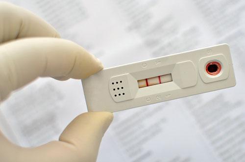 Exame de sangue dengue